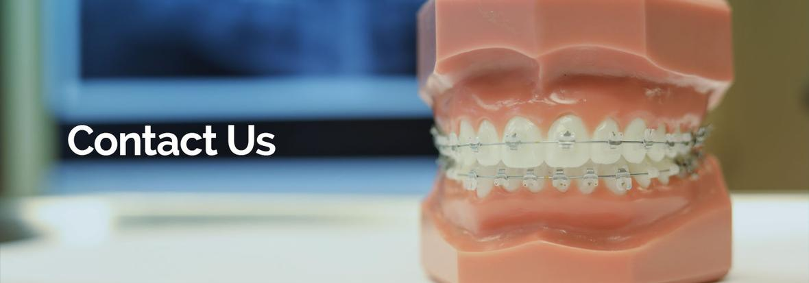 Banner picture with a scale-model of teeth with braces on